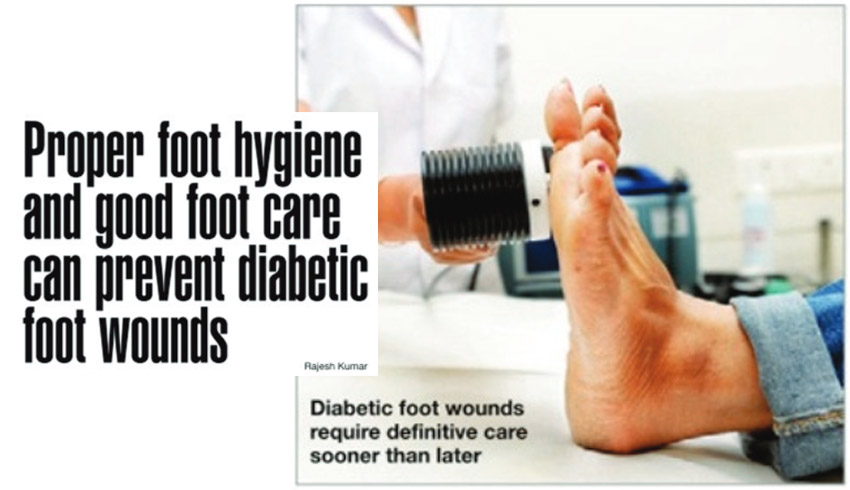 Proper foot hygiene and good food care can prevent diabetic foot wounds