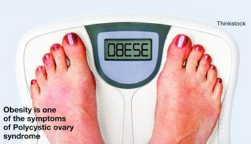 For Obesity, Infertility, Diabetes Blame PCOS